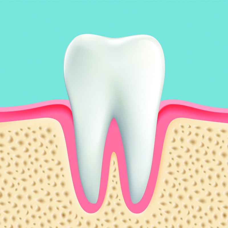 tooth preservation