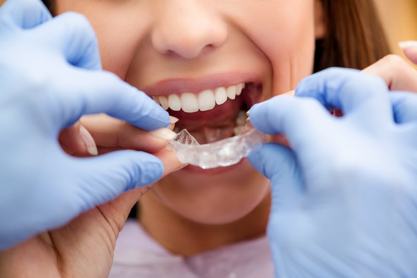 short term cosmetic orthodontics